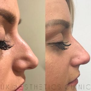 Non-surgical-nose-reshaping-dermal-filler-Lady