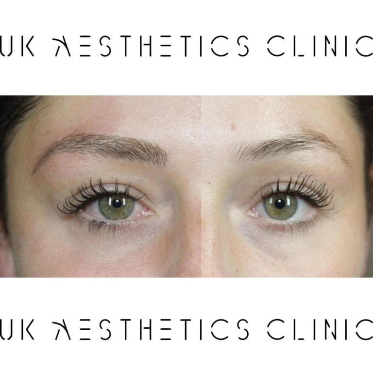 microblading-treatment-uk-aesthetics-clinic-Bethany