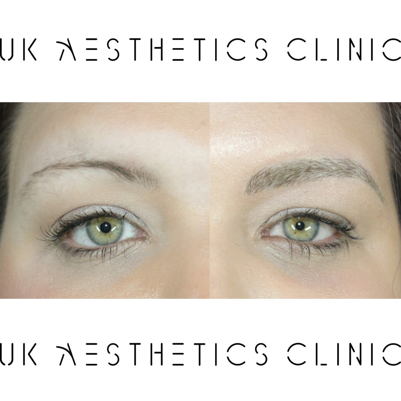 microblading-treatment-uk-aesthetics-clinic-Carly