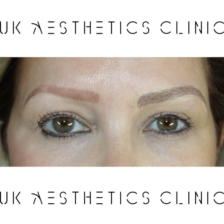 microblading-treatment-uk-aesthetics-clinic-Diane