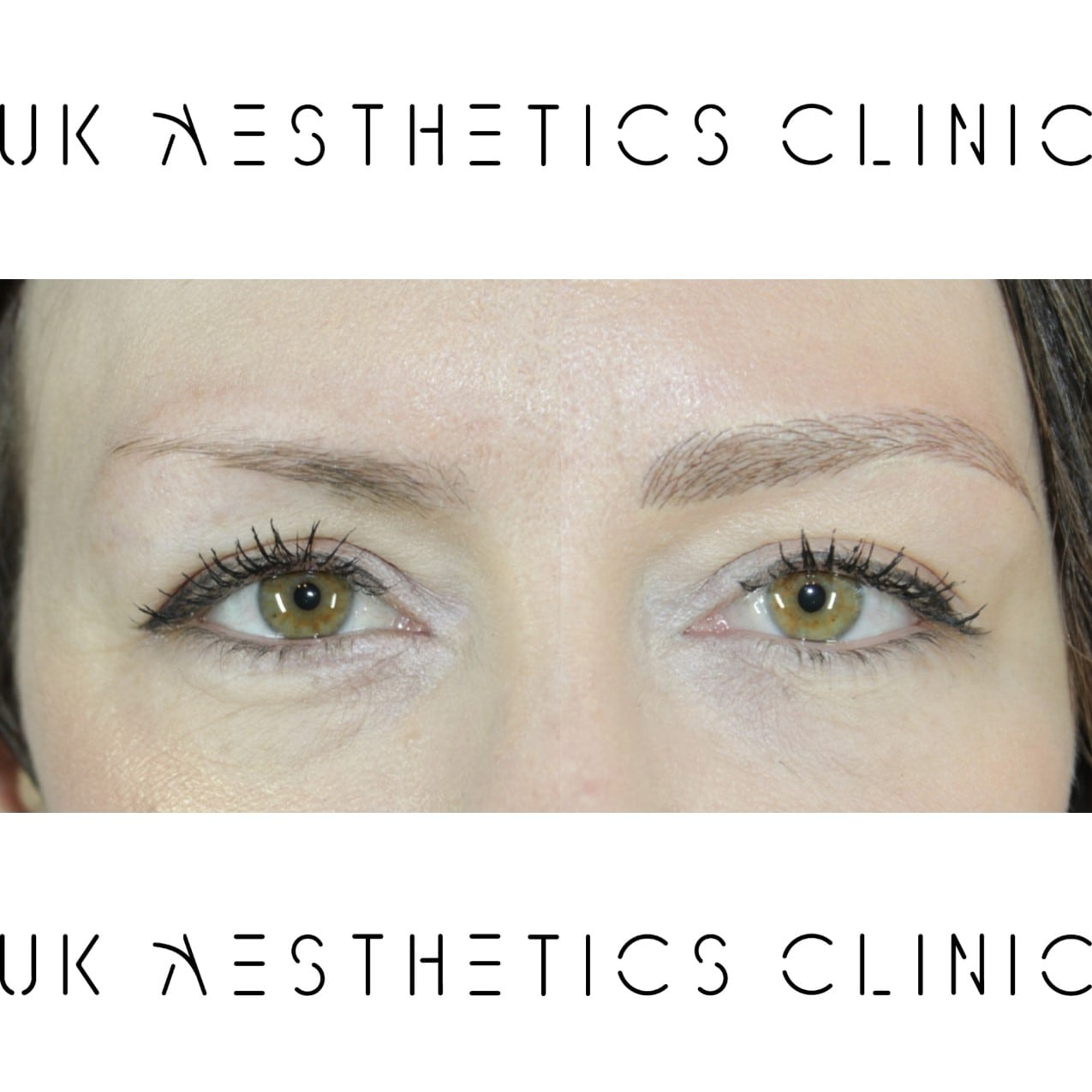microblading-treatment-uk-aesthetics-clinic-Kathryn