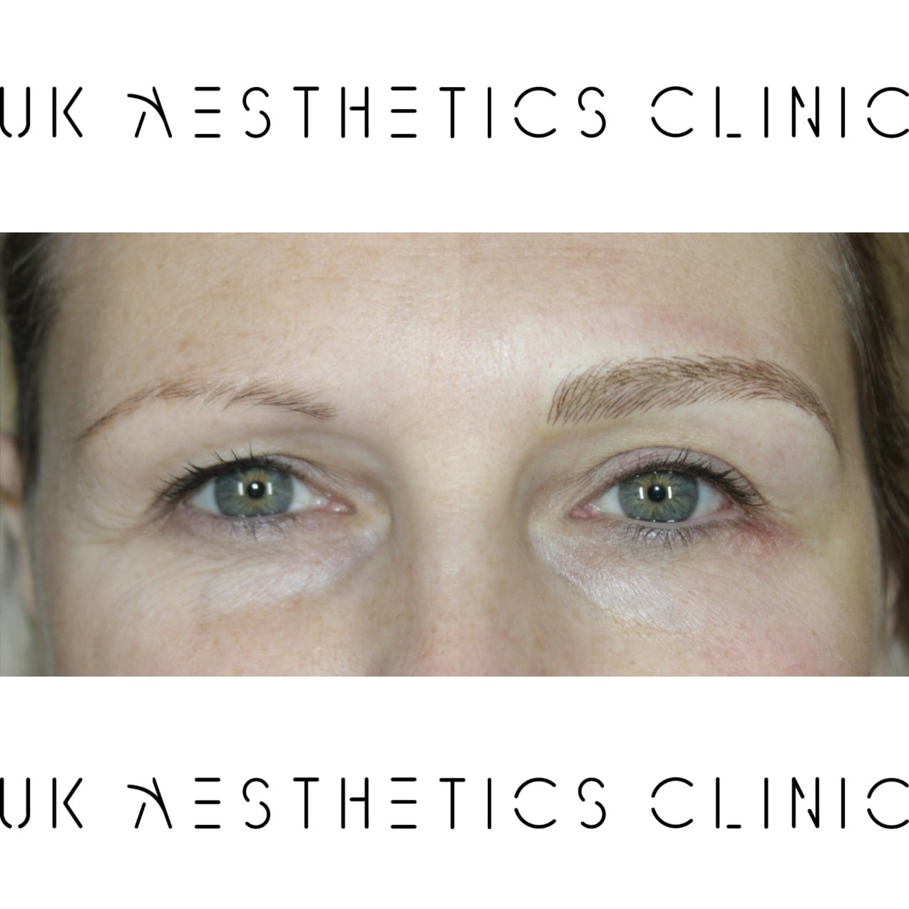 microblading-treatment-uk-aesthetics-clinic-Kelly