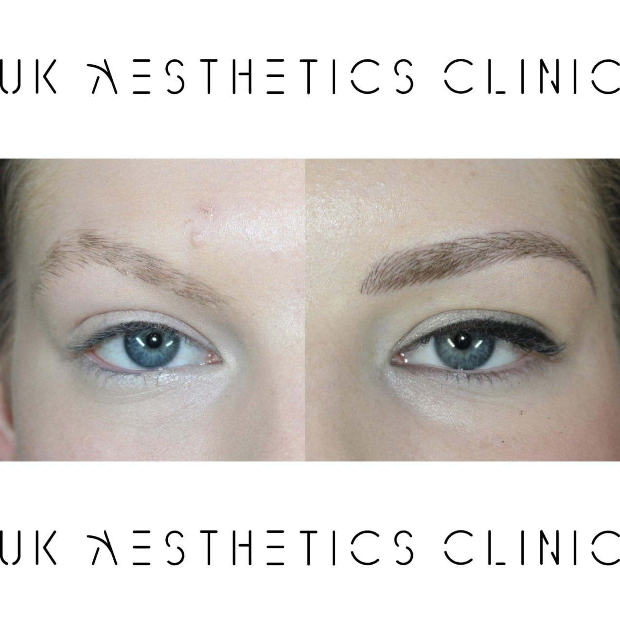 microblading-treatment-uk-aesthetics-clinic-Sophie