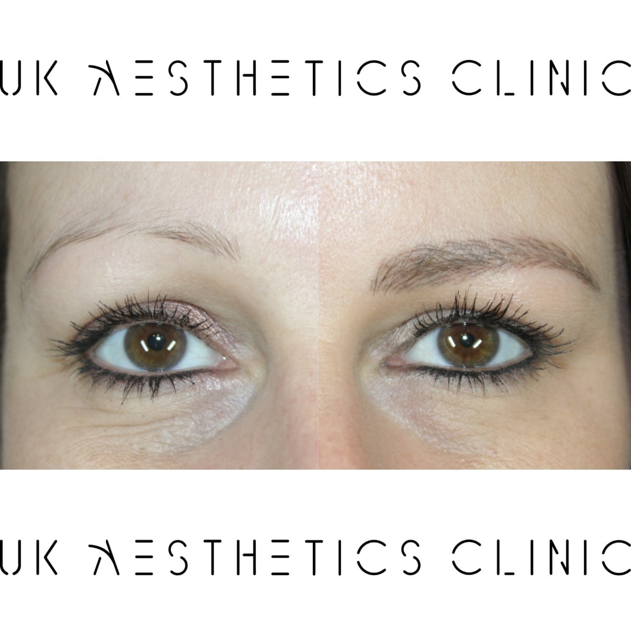 microblading-treatment-uk-aesthetics-clinic-Tyana