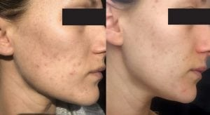 Acne-and-pigmentation-skin-peel-treatments-and-solutions-uk-aesthetics-clinic