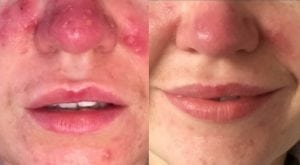Rosacea-skin-peel-treatments-and-solutions-uk-aesthetics-clinic