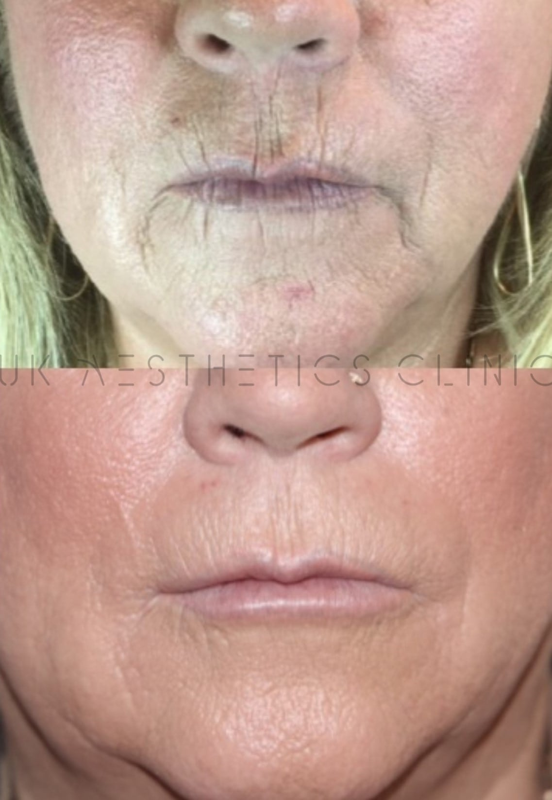 marionette lines dermal filler clinic near me by uk aesthetics clinic