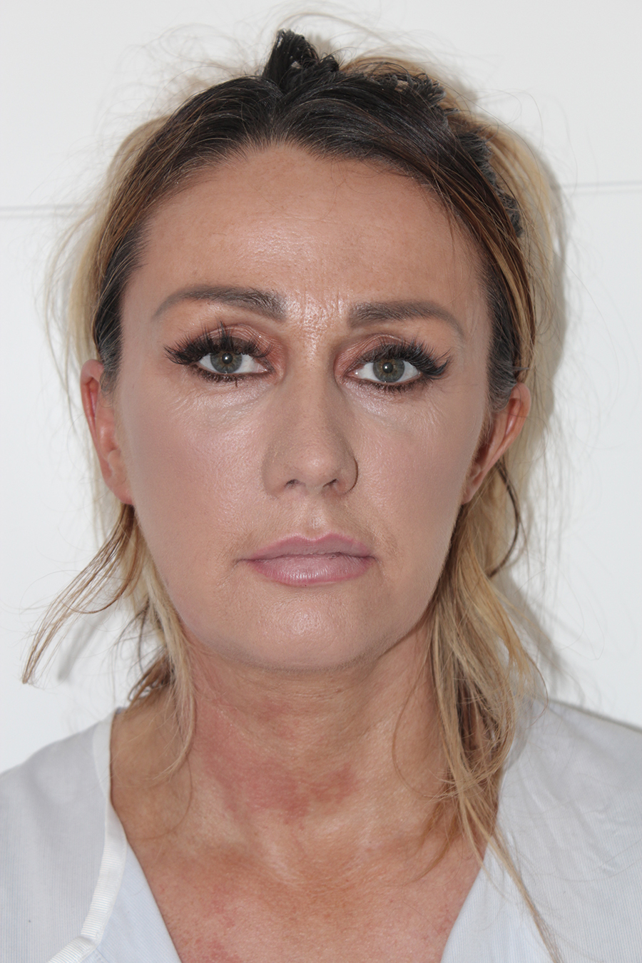 rebecca-lord-ukaesthetics-clinic-contour-package-dermal-fillers-treatment-uk-after-1