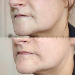 plasma-therapy-rossendale-skin-fine-lines-manchester