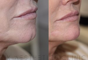 chin filler side profile mancherster rossendale