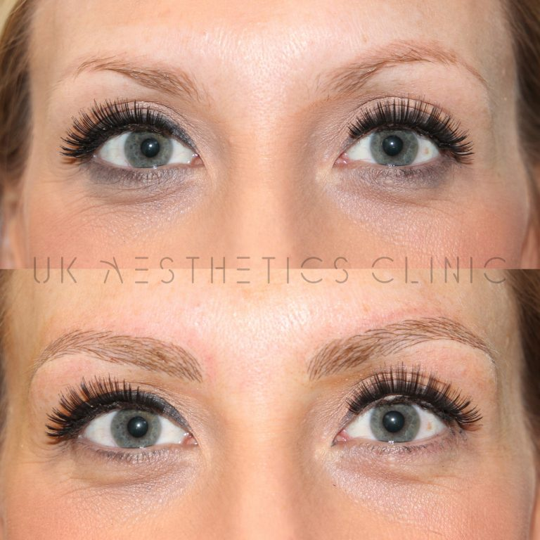 Aimee cropped 1 microblading 17.03.20