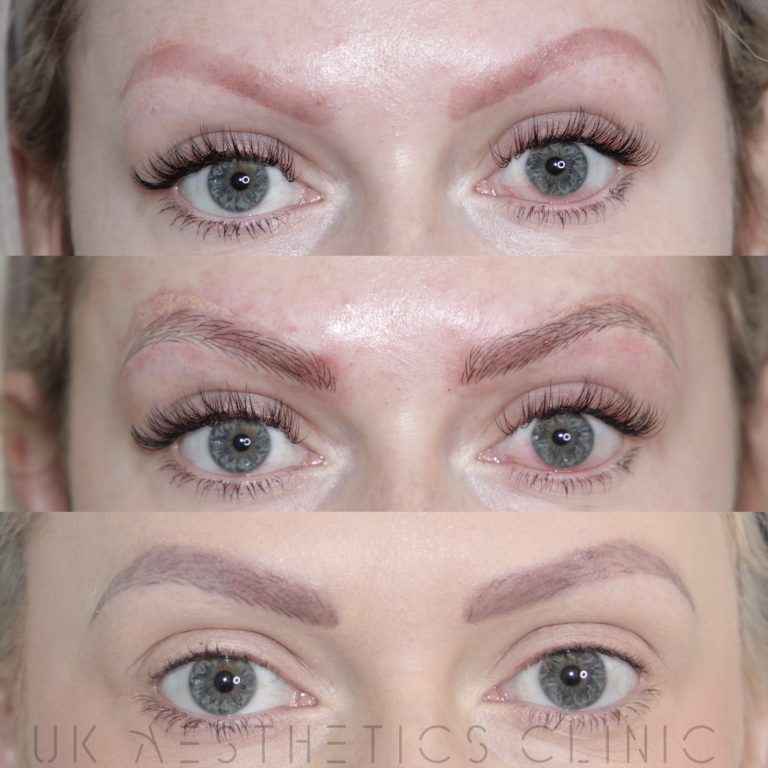 lucy-tattooremoval-microblading-cropped