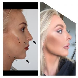 holly-jaw-chin-cheek-lip-filler