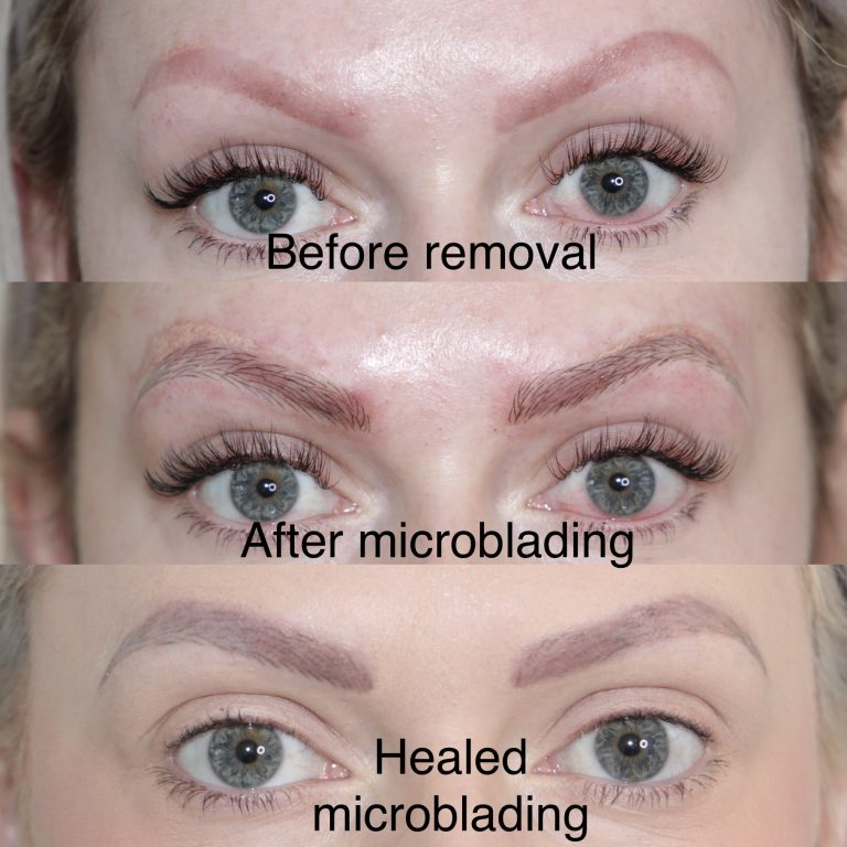 lucy-microblading-tattooremoval