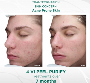 vi peel purify 2