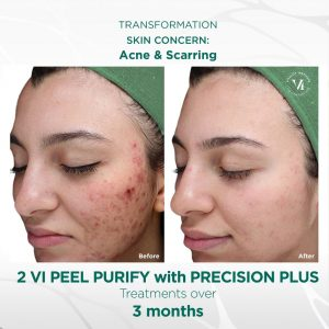 vi peel purify precision plus