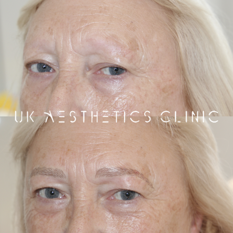 MICROBLADING OLD